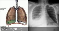 Лечение болезней органов и тканей Дыхательной системы: ухо, горло, нос (2015) Видеокурс